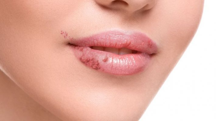 Ce este herpesul oral?