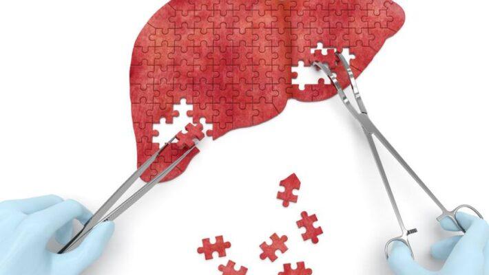 Infecția cu virusul hepatitic B